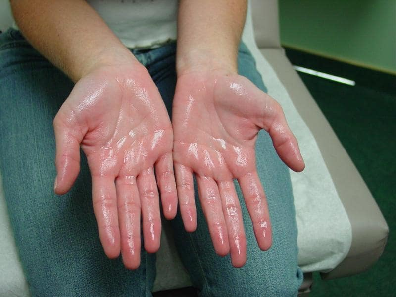 Hyperhidrosis Treatment in chennai
