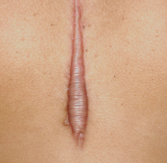 Hypertrophic and Keloid in chennai