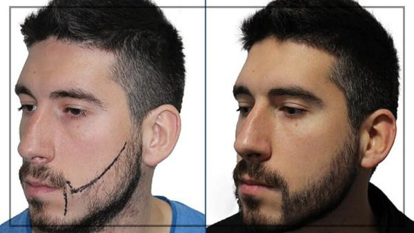 beard transplant in chennai