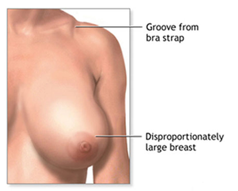 Best Breast Reduction Doctors in Chennai