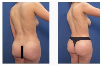 buttock reduction