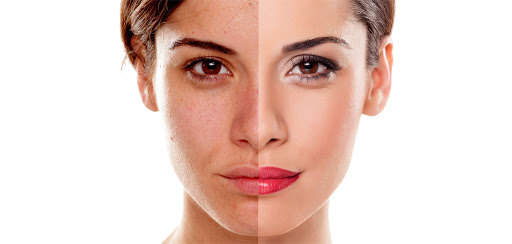 hyperpigmentation treatment in chennai