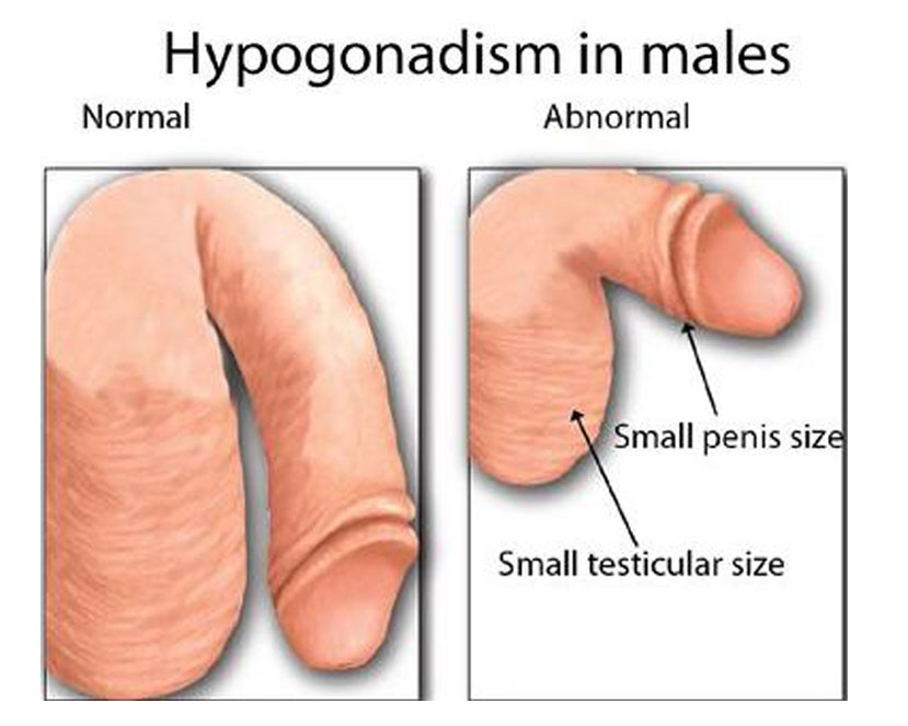 hypognadism treatment in chennai