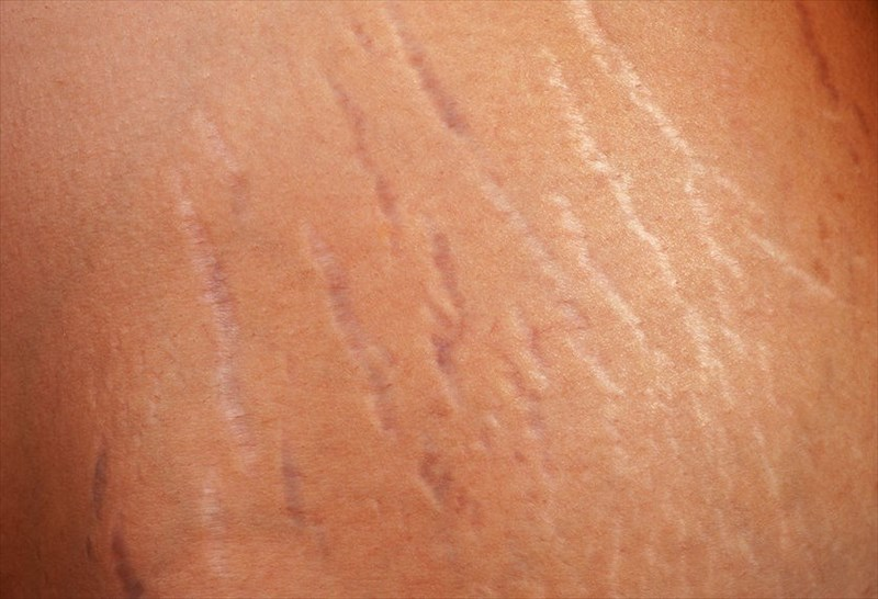 stretch marks removal in chennai