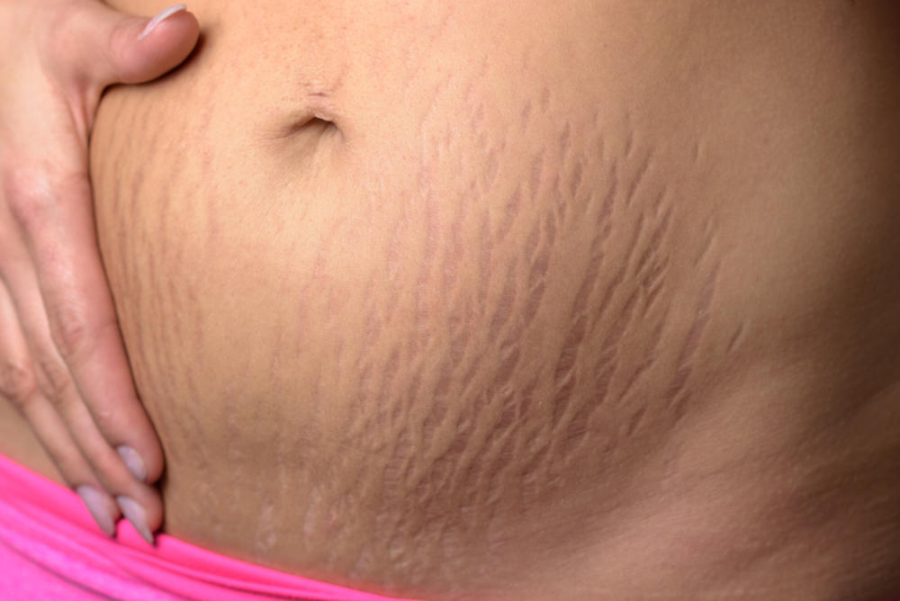 stretch marks treatment in chennai