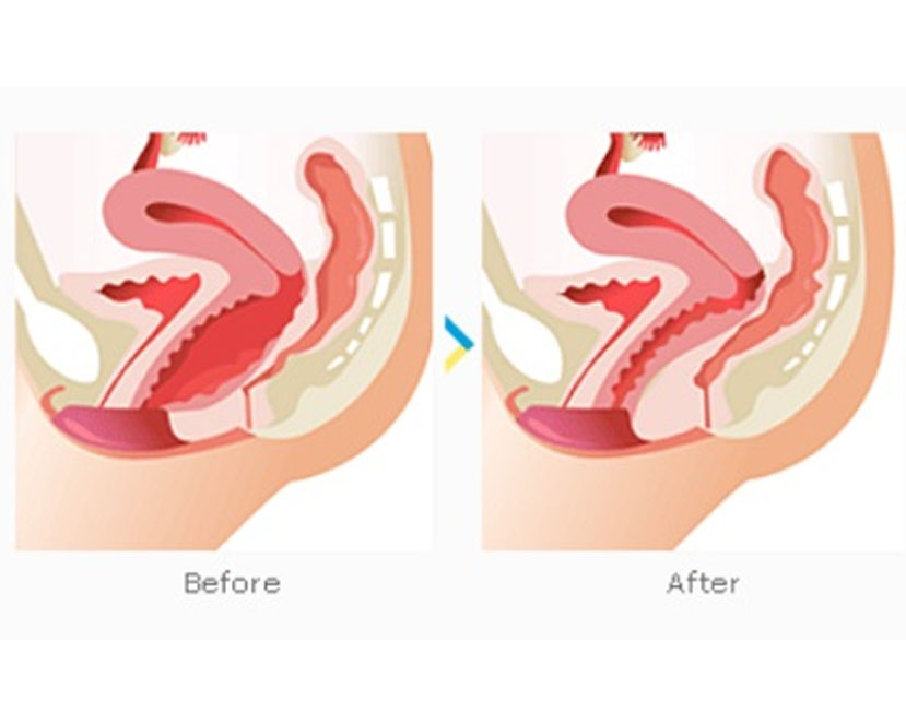 vaginoplasty treatment in chennai
