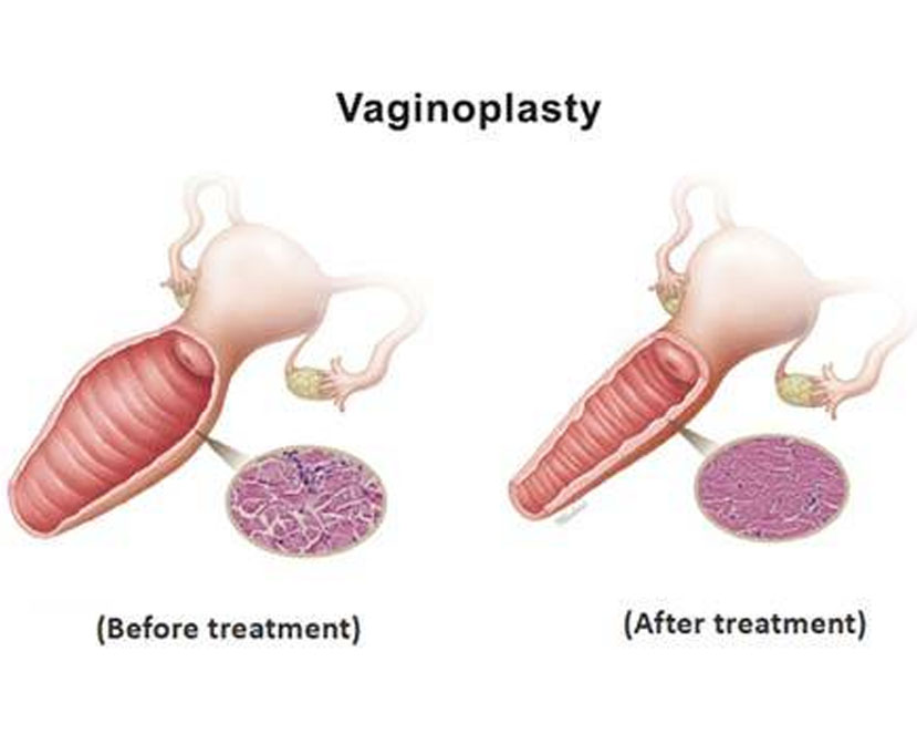 vaginoplasty in chennai