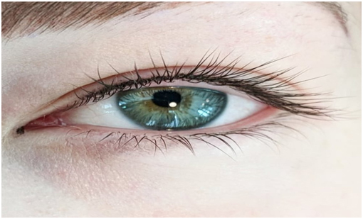 lash line enhancement treatment in chennai