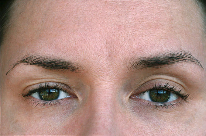 Ptosis Drooping Eyelids surgery in chennai