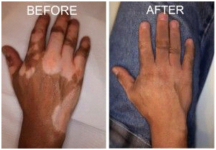 Vitiligo Treatment Doctors in Chennai