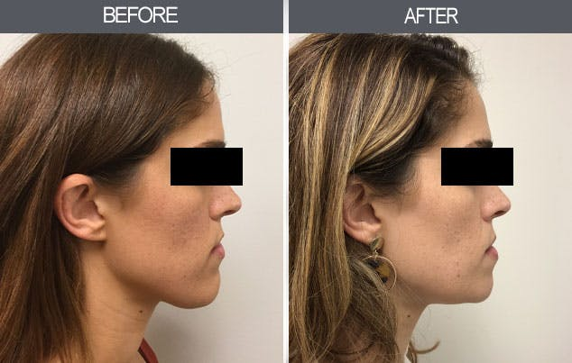Chin Reduction Surgery in Chennai