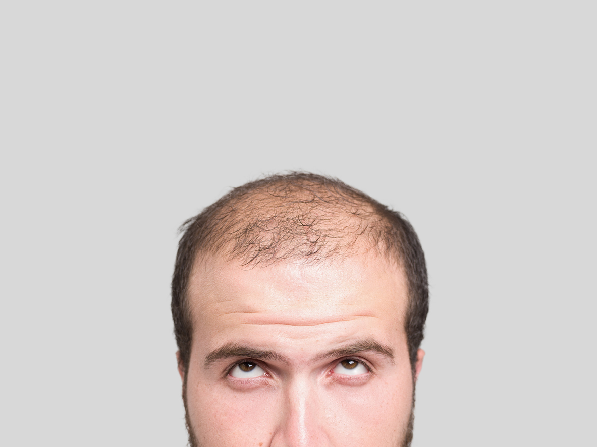 Hair Loss Treatment In Chennai